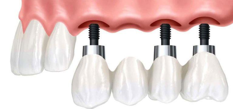 Три импланта в верхней челюсти
