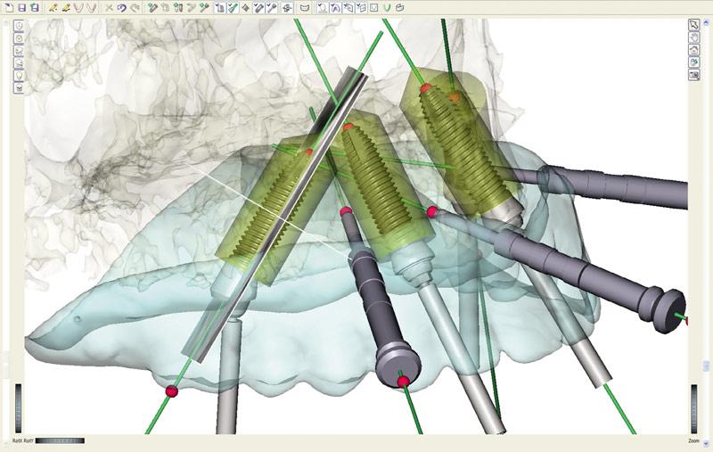 Установка конструкции имплантатов