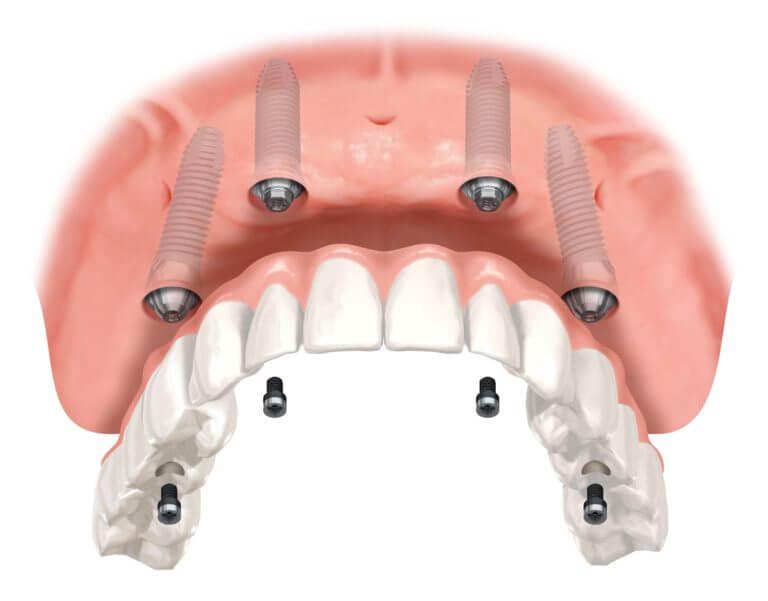 Верхняя челюсть с установленными имплантами