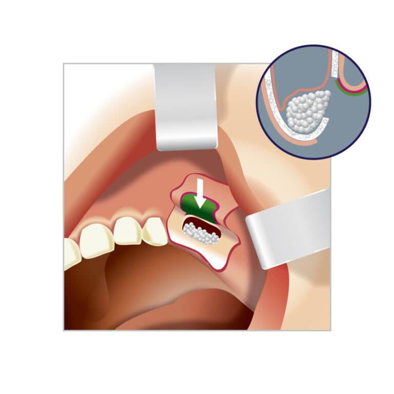 Восстановление костной ткани верхней челюсти