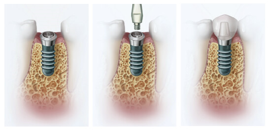 Вживление имплантов через небольшие проколы в десне