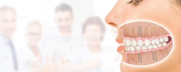 Женская челюсть вид сбоку